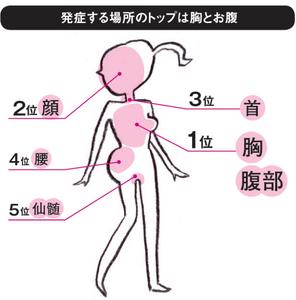 帯状疱疹.png
